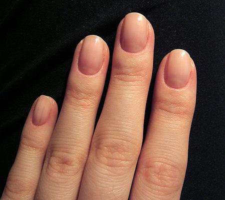 слоение ногтей причины