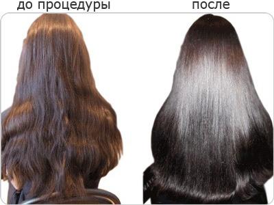 Xtv лечить выпадение волос на голове